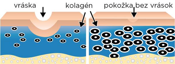 Obr.: Pokožka bez kolagénu a s dostatočným množstvom kolagénu